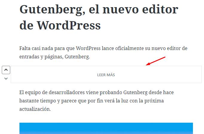Bloque leer más de Gutenberg.